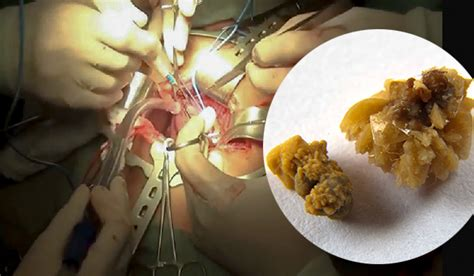 Largest Kidney Stone Removal – Video