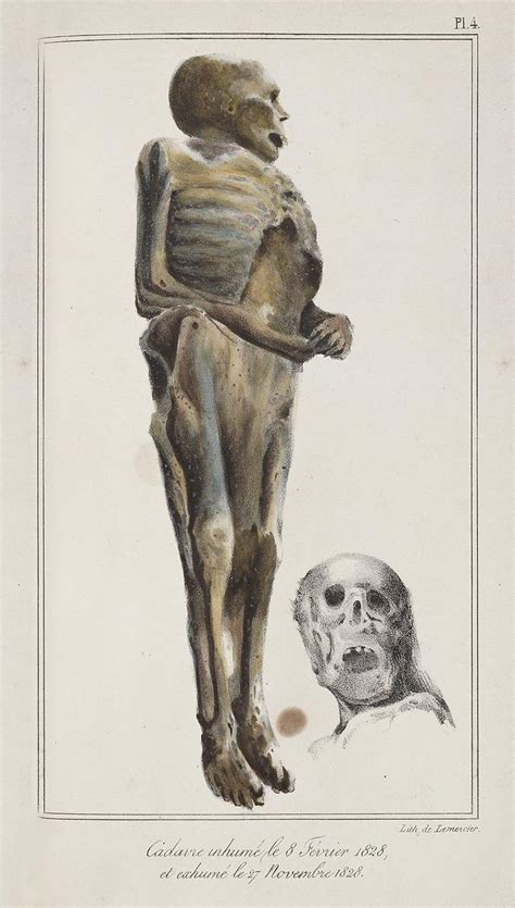 Visible Proofs: Forensic Views of the Body: Galleries