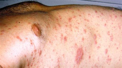Causes of a red circle on the skin other than ringworm